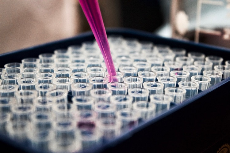 Limpar materiais de laboratório exige solução e produto específicos